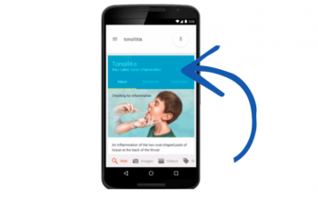 Google announced it will now start showing medical answers directly in search results through its Knowledge Graph technology.